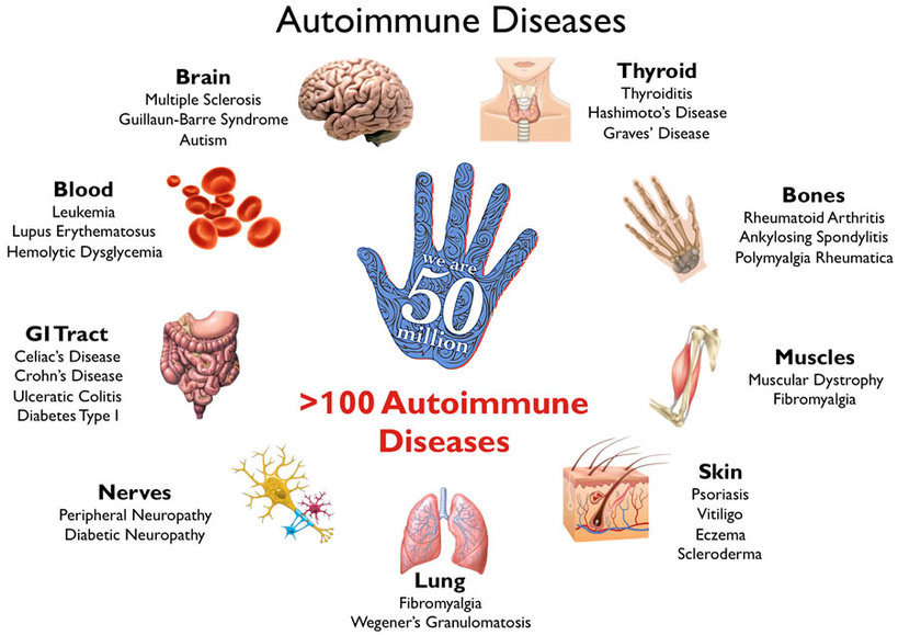 autoimmune diseases | full health secrets, Skeleton